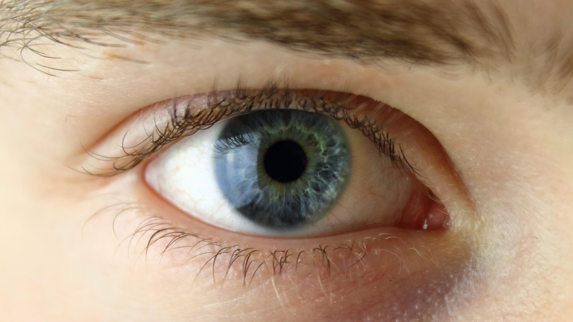 Droge ogen, hoe herkennen we ze - Membrasin eye care